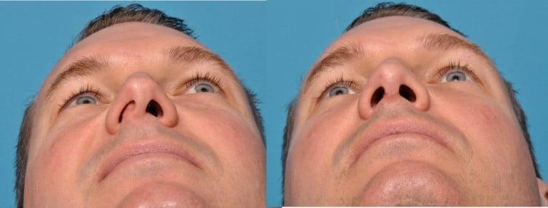 deviated septum treatment los angeles 768x292 1
