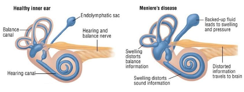 menieres disease treatment