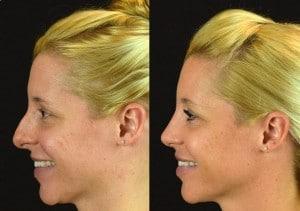 rhinoplasty aw ba profile