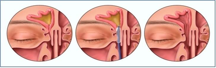 sinus balloon dilation